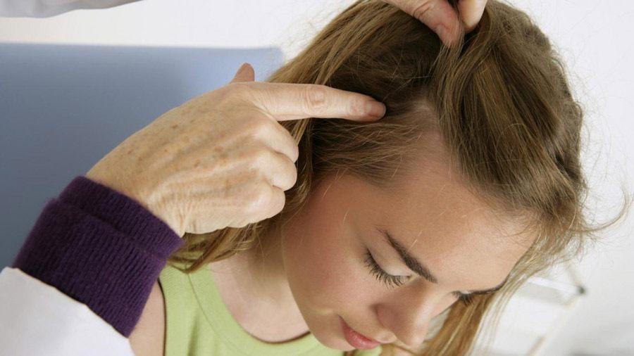 Грибок волос, как причина выпадения волос