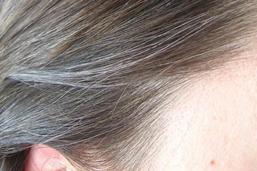 Почему седеют волосы в раннем возрасте